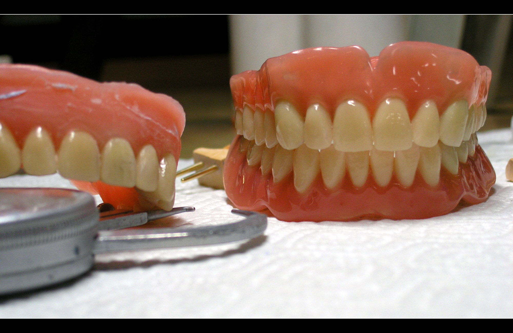 3D printing could be the future of false teeth