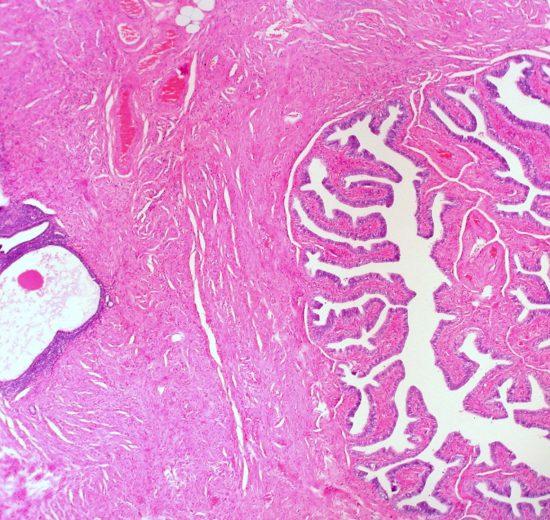 Endometriosis cells