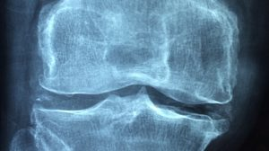 joint disease